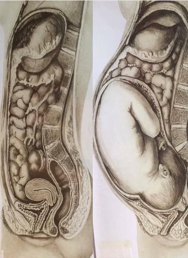 -25 % de durée d'accouchement